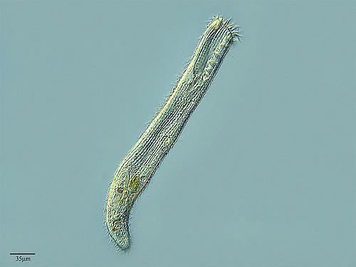 spirostomum